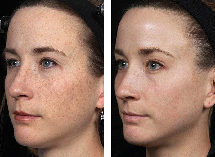 Hautverj 252 Ngung Laser Kosmetik Bassetti